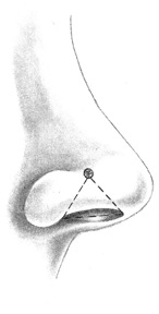 Nostril Piercing Placement Diagram