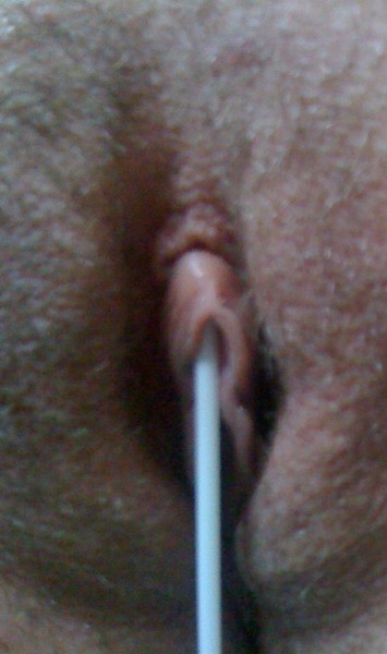 Q-tip Test for VCH Piercing