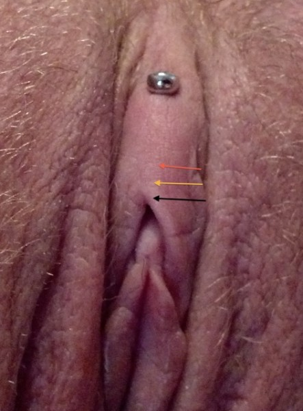 Vertical Clit Hood Piercing with arrows