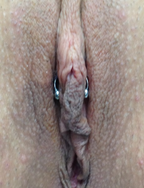 Triangle clit piercing