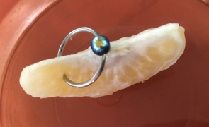 Questions About Piercing Migration And Rejection Elay