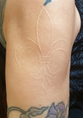 My fleur de lis etching (scar) on my right upper arm in 2017