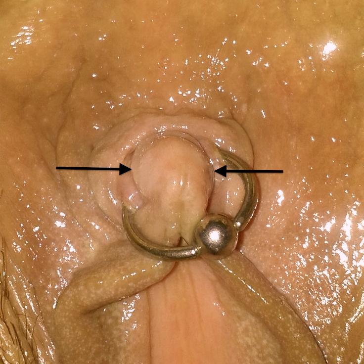 Naked midget women having sex
