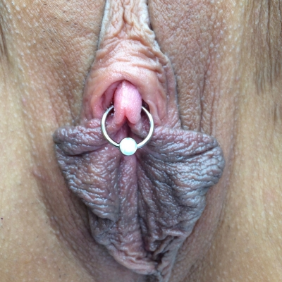 Clitoris (clitoral glans) piercing with captive bead ring