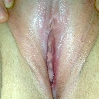 A woman built without inner labia (normal variation)-not pierceable for this placement
