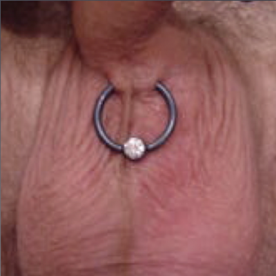 A lorum piercing with captive niobium ring placed to ignore an off-center midline ridge