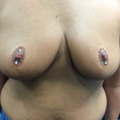 A pair of angled nipple piercings on a woman who had breast reduction surgery