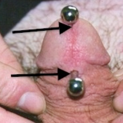 PA with a curved bar and sufficient room for erection measured between lower edge of urethra and piercing