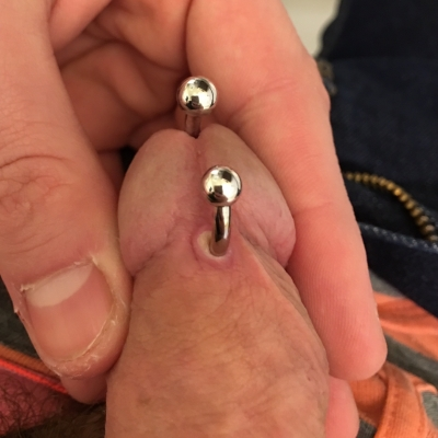 PA piercing suffering from excess trauma during healing causing irritation and excess scarring