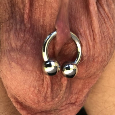 A  lorum piercing through too little tissue (it is rejecting) with a circular barbell with too-large balls
