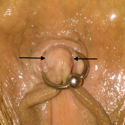 Arrows indicating where the poorly placed clitoris piercing should have been located
