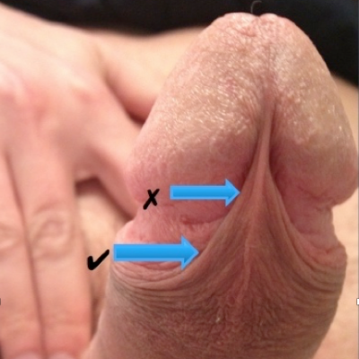 A penis marked with two arrows to show preferred placement for frenum piercings