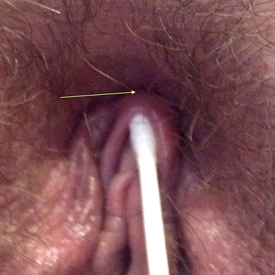 A shallow hood on a woman who has a pubic mound so close it might not leave enough space for jewelry