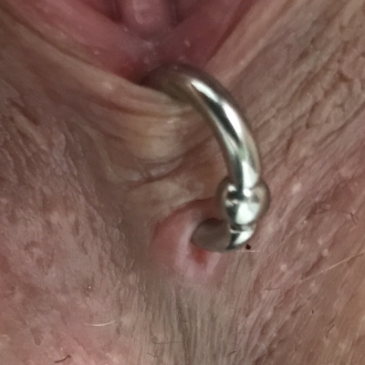 Fourchette piercing with a captive ring that is too small, and pinching on the tissue