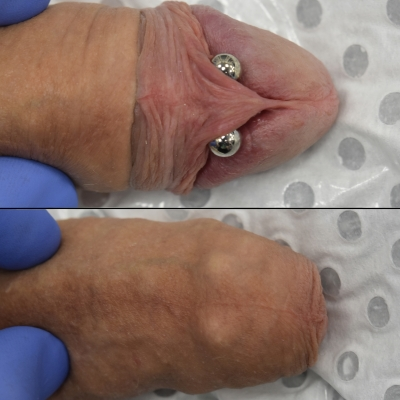 Frenum piercing on intact build, both exposed and within foreskin Joeltron Bament, Opal Heart, http://www.opalheart.com.au/