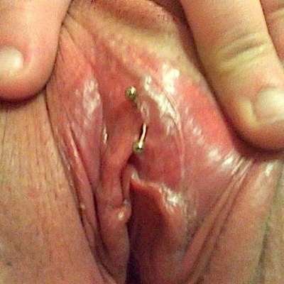 A hood surface piercing, and not a VCH