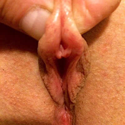 Another failed pinch test that is not beneath the clitoral shaft